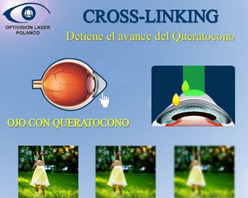 cross-linking